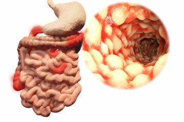 morbo crohn