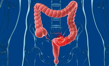 tumore anale e rettale